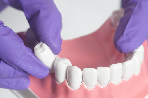 Tooth extraction procedure at Martin Periodontics