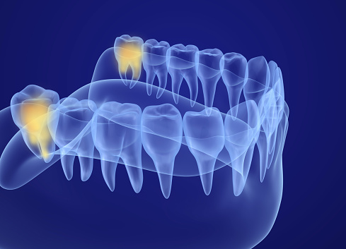 Wisdom teeth removal at Martin Periodontics in Mason & North Cincinnati, OH