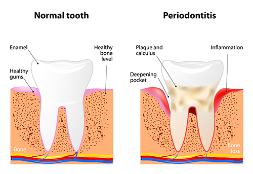 Consequences of Periodontal Disease chart from Martin Periodontics in Mason & North Cincinnati, OH