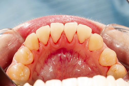 How Often Does Gum Disease Come Back After Treating It?